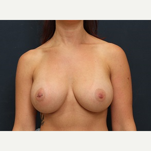 25-34 year old woman treated with Breast Augmentation after 3344109