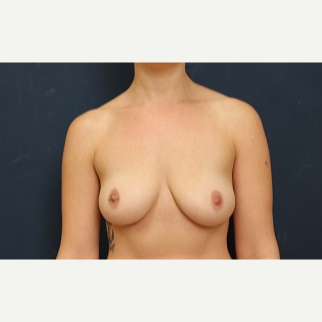 25-34 year old woman treated with Breast Augmentation before 3344109