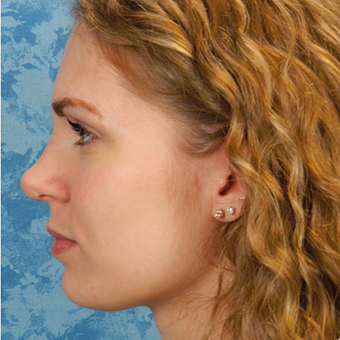 Rhinoplasty after 3124727