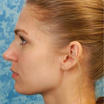Rhinoplasty before 3124727