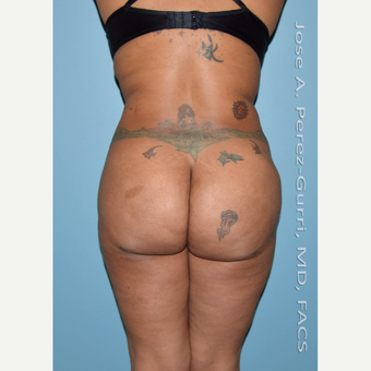 35-44 year old woman treated with Liposuction-Hips/flanks/abdomen-Power Assisted (PAL) before 3080036