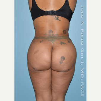 35-44 year old woman treated with Liposuction-Hips/flanks/abdomen-Power Assisted (PAL) after 3080036
