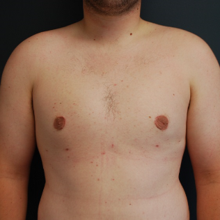25-34 year old man treated with Male Breast Reduction after 3613616
