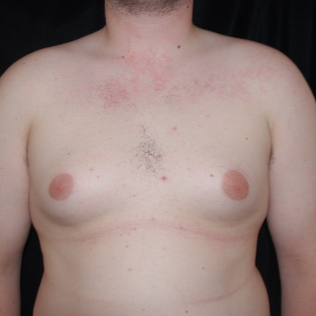 25-34 year old man treated with Male Breast Reduction before 3613616