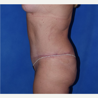 35-44 year old woman treated with No-Drain Tummy Tuck after 3649507
