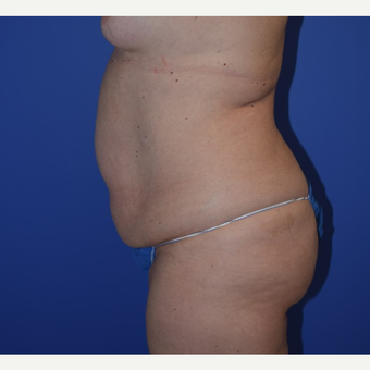 35-44 year old woman treated with No-Drain Tummy Tuck before 3649507