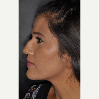 25-34 year old woman treated with Septoplasty 10 days post-op before 3452272