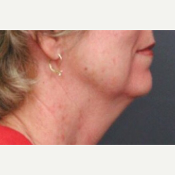 55-64 year old woman treated with Neck Lift before 3022780