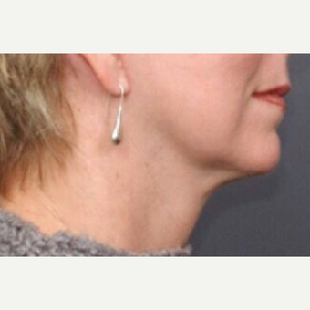 55-64 year old woman treated with Neck Lift after 3022780