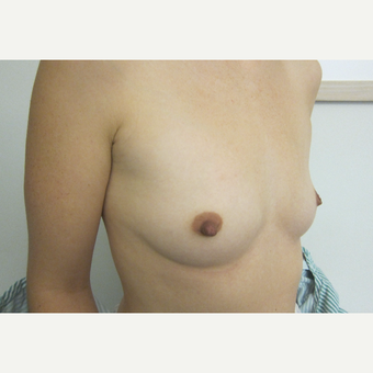 35-44 year old woman treated with Breast Implants before 3266006