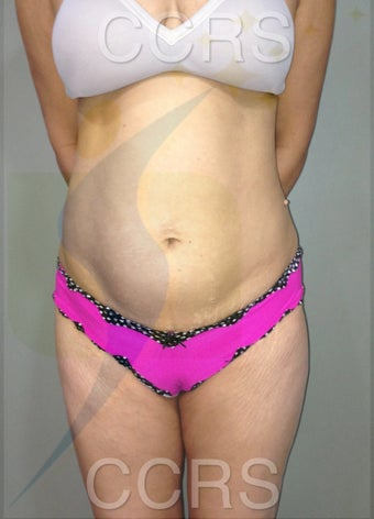 35 yr. old female for body contouring before 636292