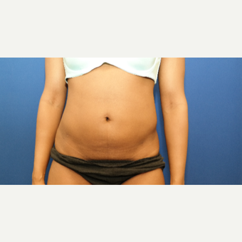 25-34 year old woman treated with Liposuction after 3130218