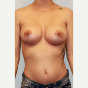 18-24 year old woman treated with Breast Implants after 3027117