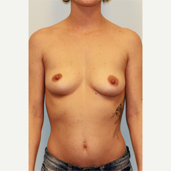 18-24 year old woman treated with Breast Implants before 3027117