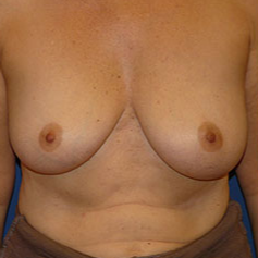 Breast Implant Removal after 2267565
