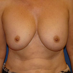Breast Implant Removal before 2267565