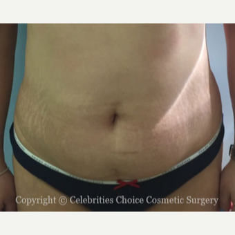 35-44 year old woman treated with Tummy Tuck before 3426287