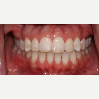 25-34 year old woman treated with Porcelain Veneers before 3848499