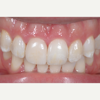 25-34 year old woman treated with Porcelain Veneers after 3848499