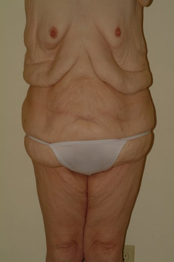 Tota body contouring before 1059173
