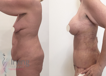 35-44 year old woman treated with Breast Lift with Implants