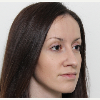 25-34 year old woman treated with Rhinoplasty after 3340357