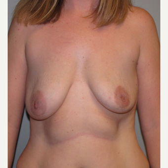 35-44 year old woman treated with Breast Lift with Implants before 3136658