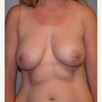 35-44 year old woman treated with Breast Lift with Implants after 3136658