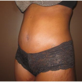35-44 year old woman treated with Tummy Tuck after 3213899