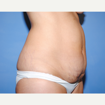 25-34 year old woman treated with Tummy Tuck before 3763325