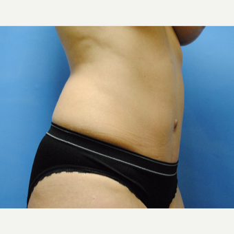 25-34 year old woman treated with Tummy Tuck after 3763325