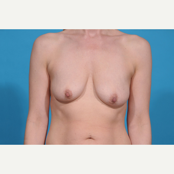 35-44 year old woman treated with Breast Lift with Implants before 3777077