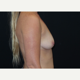 35-44 year old woman treated with Breast Augmentation before 3305036