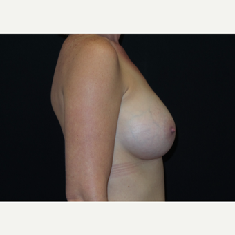 35-44 year old woman treated with Breast Augmentation after 3305036