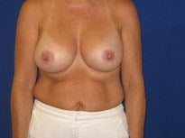 Saline Breast Implants after 1368327