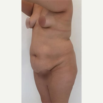 25-34 year old woman treated with Tummy Tuck, Liposuction and Breast Augmentation before 2081118