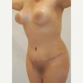 25-34 year old woman treated with Tummy Tuck, Liposuction and Breast Augmentation after 2081118