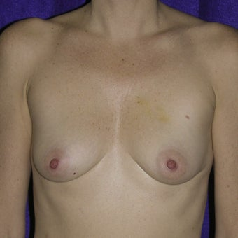 45 year old  Breast Augmentation before 1746597