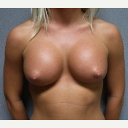 25-34 year old woman treated with Breast Implants after 3108552