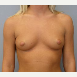 25-34 year old woman treated with Breast Implants before 3108552