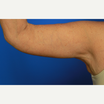 70-year old woman treated with Arm Lift after 3108408
