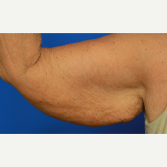 70-year old woman treated with Arm Lift before 3108408