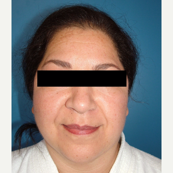 55-64 year old woman treated with MACS Facelift after 3748033