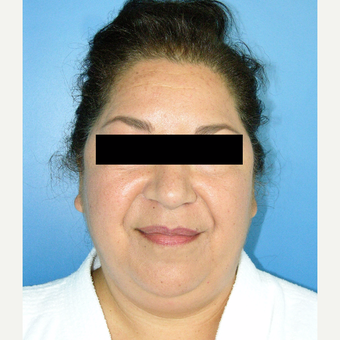 55-64 year old woman treated with MACS Facelift before 3748033