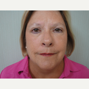 45-54 year old woman treated with Eyelid Surgery after 3823333