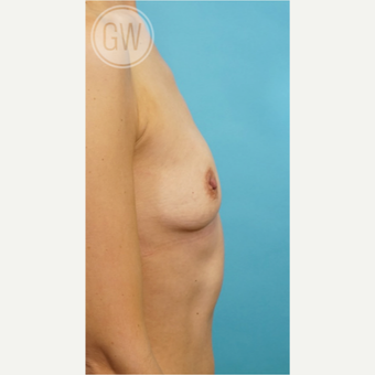 35-44 year old woman treated with Breast Augmentation before 3468809