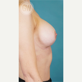 35-44 year old woman treated with Breast Augmentation after 3468809