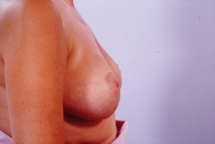 Breast Reduction after 3446221
