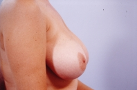 Breast Reduction before 3446221