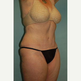 "58 year old woman, 5'6"", 188 lbs. four months after lipoabdominoplasty after 3771642"